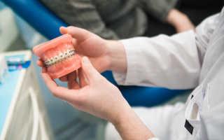 Чем занимается врач ортодонт стоматолог