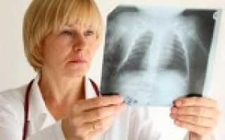 Что смотрит врач ревматолог